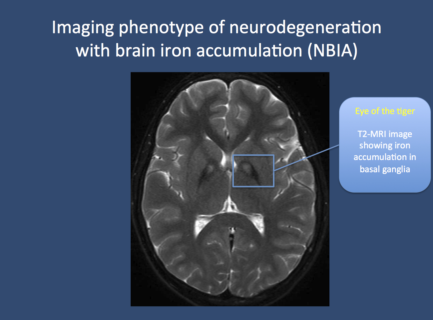 "Figure. The eye of the tiger in NBIA in a patient with pantothenate kinase-associated neurodegeneration (PKAN). Neuroimaging in patients with PKAN and other NBIA is usually associated with a pathognomonic finding. Due to the accumulation of iron in the basal ganglia, two black spots can be seen, which is referred to as the ""eye of the tiger"" sign. PKAN is part of a group of disorders referred to as neurodegeneration with brain iron accumulation. Image from Wikimedia commons (http://commons.wikimedia.org/wiki/File:Pkan-basal-ganglia-MRI.JPG), within the framework of the Creative Commons license."