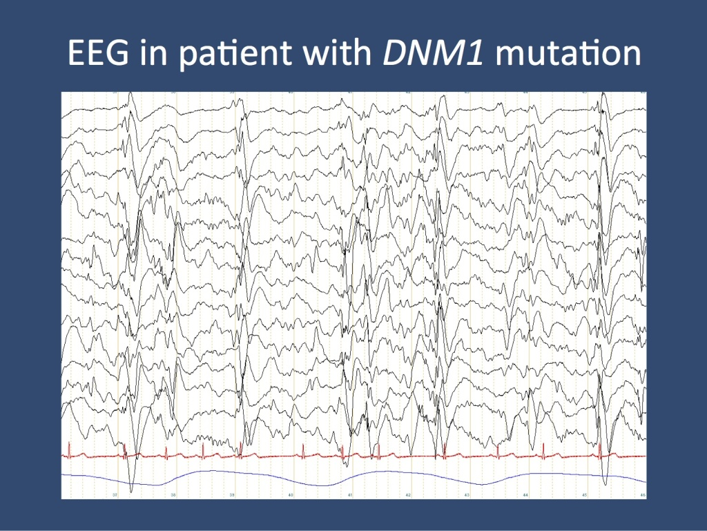 EEG of a patient with a DNM1 mutation, show slow-spike wave during an obtundation status. This EEG is the electrographic hallmark of Lennox-Gastaut Syndrome.