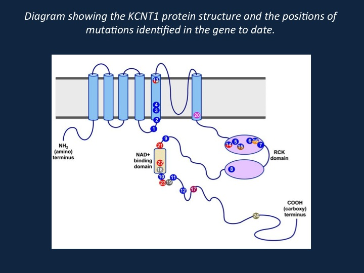 Diagram showing the KCNT1 protein structure and the positions of mutations identified in the gene to date. The KCNT1 protein consists of six hydrophobic transmembrane segments (S1–S6) with the pore-loop between S5 and S6. It has a large intracellular carboxy-terminal region containing tandem RCK domains and an NAD+ binding domain. The positions of missense mutations reported by previous studies are indicated, with different colours denoting different phenotypes. Mutations that are associated with more than one phenotype are marked with two or more colours. The numbers in bold type indicate the number of times recurrent mutations have been observed in multiple families and/or patients. ADNFLE, autosomal-dominant nocturnal frontal lobe epilepsy; EOEE, early-onset epileptic encephalopathy; MMFSI, malignant migrating focal seizures of infancy. Adapted by permission from BMJ Publishing Group Limited. Chiao Xin Lim et al. J Med Genet doi:10.1136/jmedgenet-2015-103508