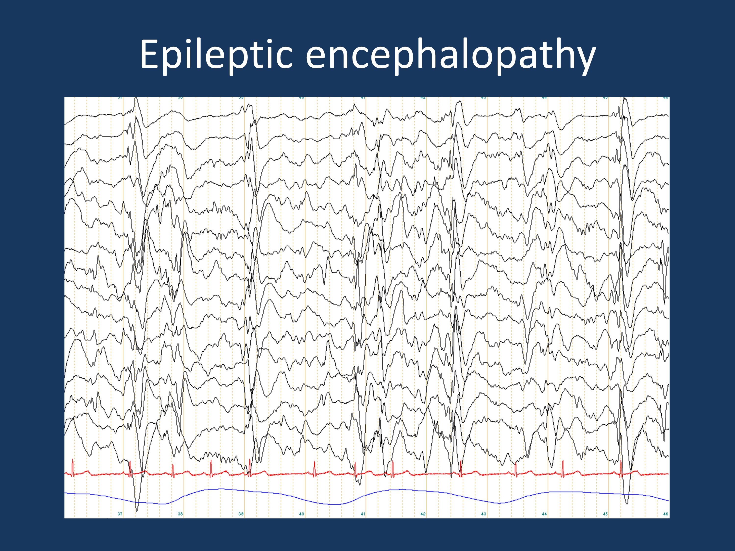 EEG findings in a patient with Lennox-Gastaut Syndrome. The EEG shows the finding of continuous slow spike-wave activity, indicating a profound disturbance of cortical function leading to an epileptic encephalopathy. The current blog post discusses whether the concept of epileptic encephalopathy should be used as a diagnostic category or should be reserved for a particular state of the patient's disease.